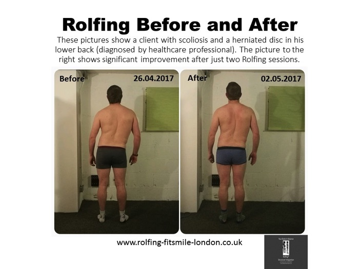 Rolfing Before and After These pictures show a client with scoliosis and a herniated disc in his lower back (diagnosed by healthcare professional). The picture to the right shows significant improvement after just two Rolfing sessions.